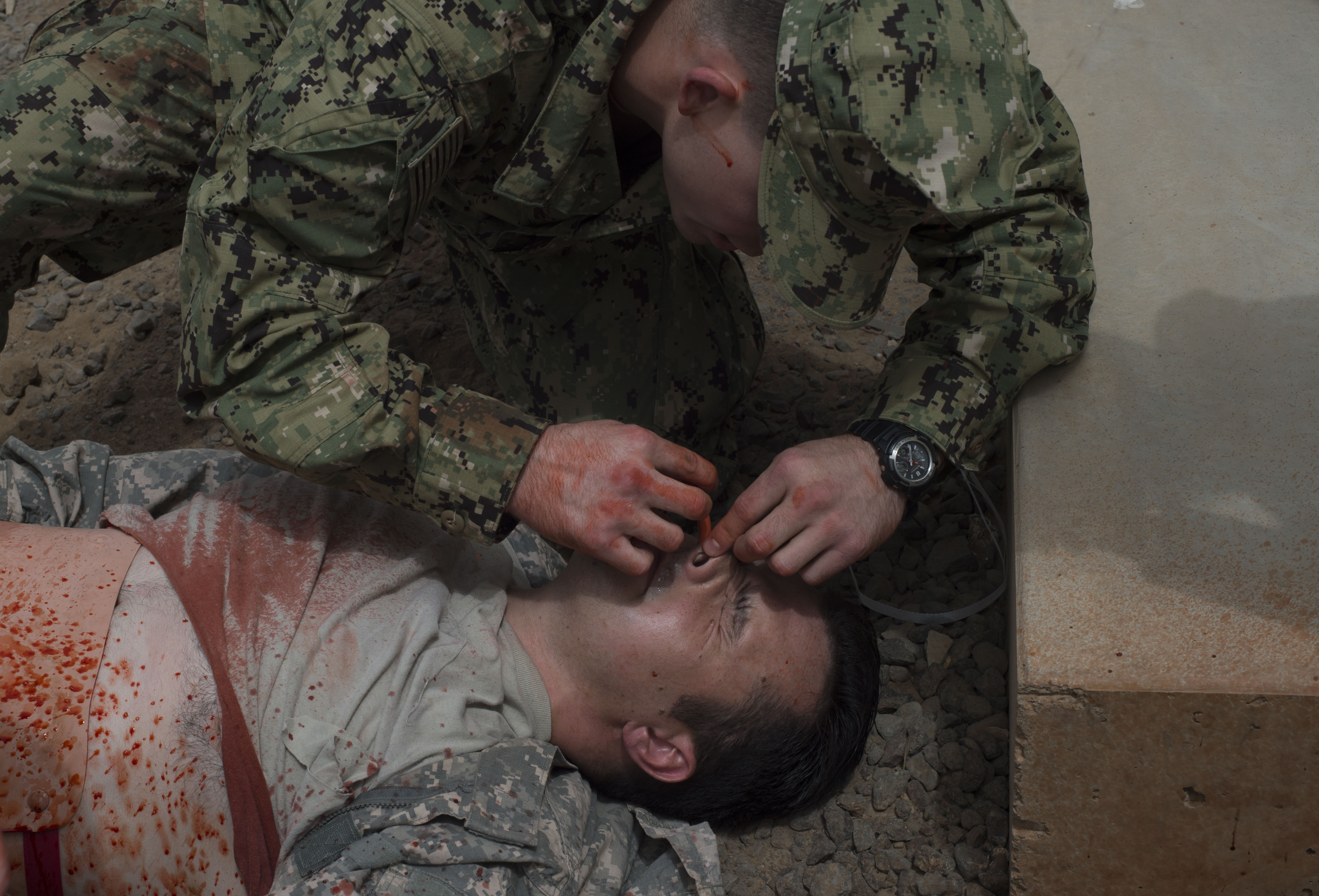 U.S. Army Spc. Kyle Davidson, 403rd Civil Affairs Battalion simulated casualty volunteer, receives a nasopharyngeal airway during a combat lifesaver course practical exam June 23, 2016, at Camp Lemonnier Djibouti. Soldiers from the 403rd CA BN assigned to Combined Joint Task Force-Horn of Africa taught fellow service members and French military members how to potentially say a life. (U.S. Air Force photo by Staff Sgt. Eric Summers Jr.)